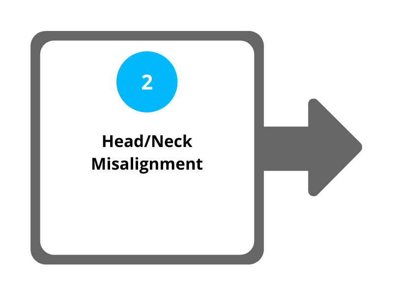 Step 2 Head and Neck Misalignment