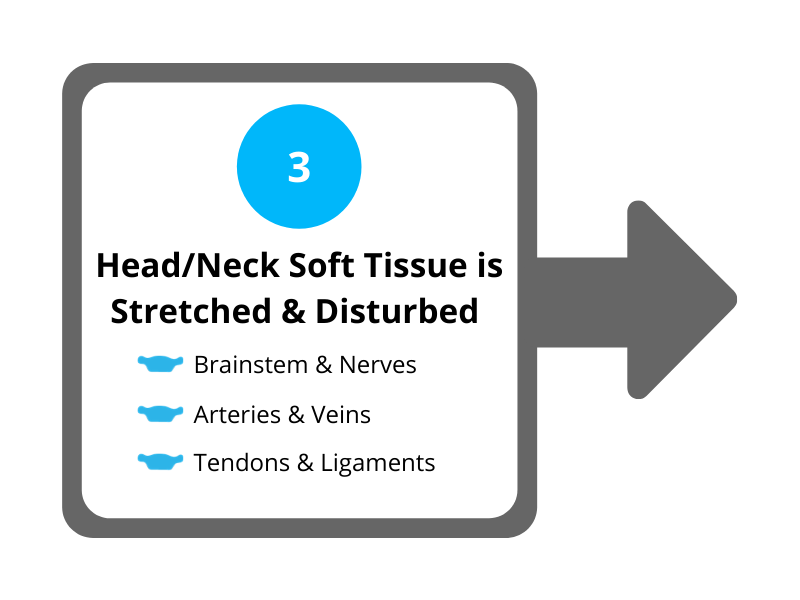 Step 3 Head and Neck Soft Tissue is Stretched and Disturbed